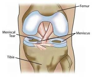 Meniscus image with tear