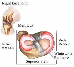 meniscus zones